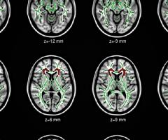 Brain scans, Journal of Wild Culture, ©2015